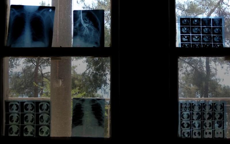 heybeliada sanatoryumu rontgen filmleri